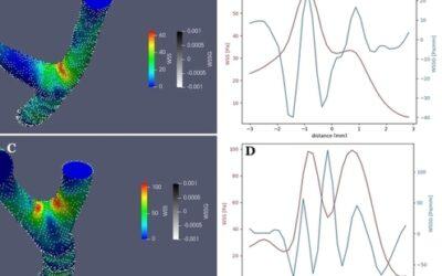 Naprężenia ścinające oraz ich gradient w etiologii tętniaków mózgu