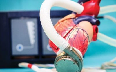 """Projekt: """"Jednoczęściowy miniaturowy wirnik 4D dla pompy krwi"""""""